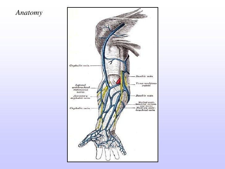 A v fistula in heamodialysis
