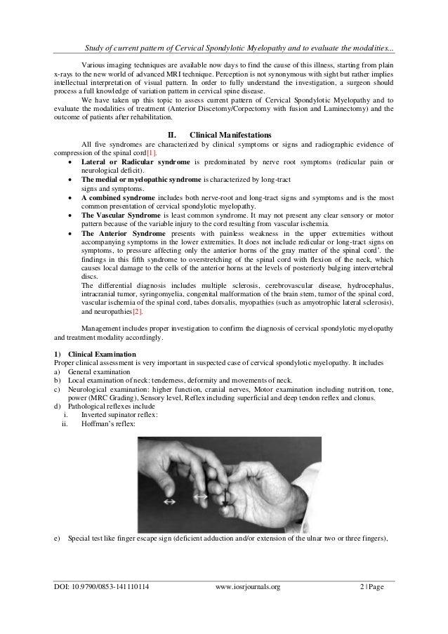 Cervical spondylosis thesis