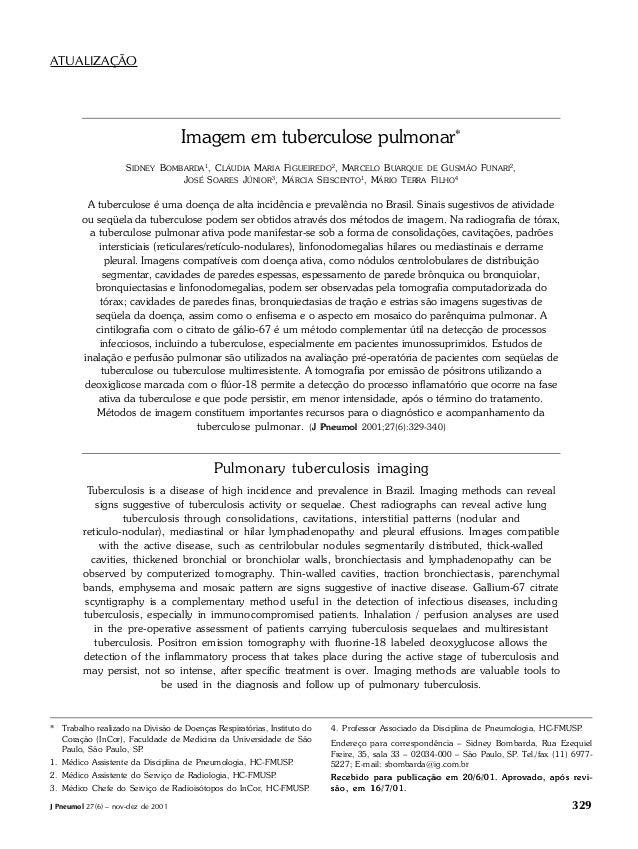 J Pneumol 27(6) – nov-dez de 2001 329 Imagem em tuberculose pulmonar Imagem em tuberculose pulmonar* SIDNEY BOMBARDA1, CLÁ...