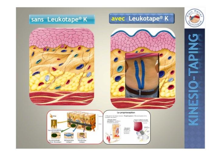 Techniques de coupeLa peau doit être bien préparée:• sèche• exempte de graisse• si possible exempte de poils