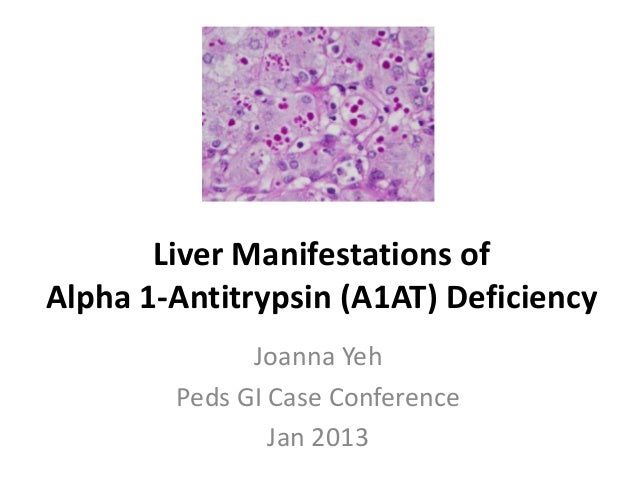 Liver Manifestations of Alpha 1-Antitrypsin (A1AT) Deficiency Joanna Yeh Peds GI Case Conference Jan 2013