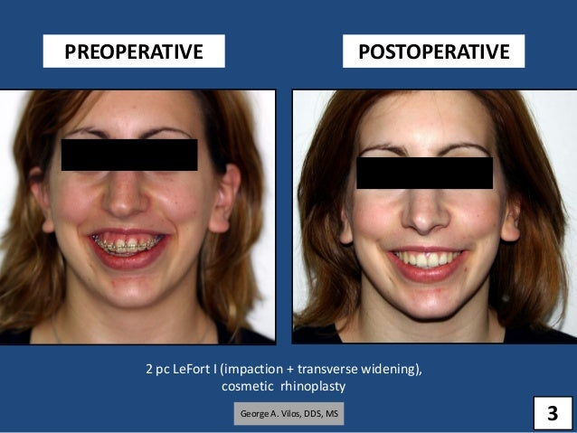 B orthognathic surgery results George Vilos