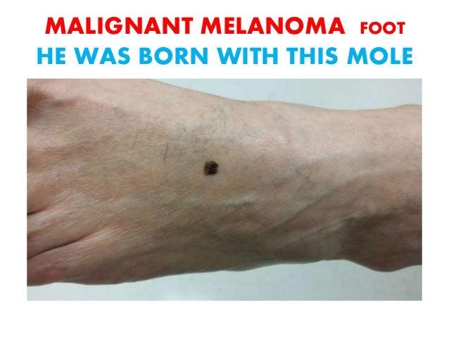 Lentigo Maligna Melanoma Foot
