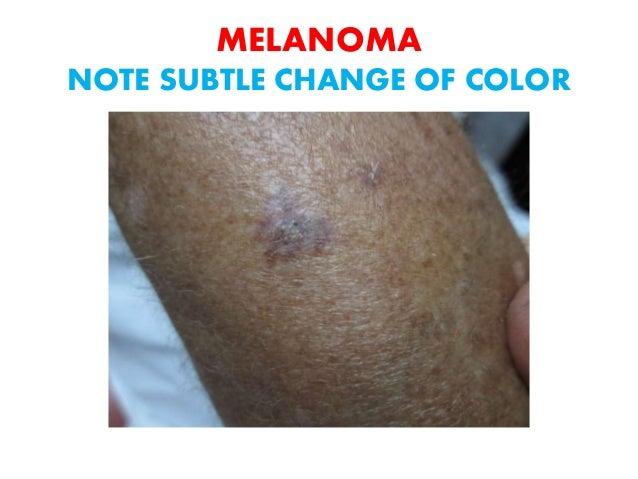 Skin Cancer A Curable Disease 2016
