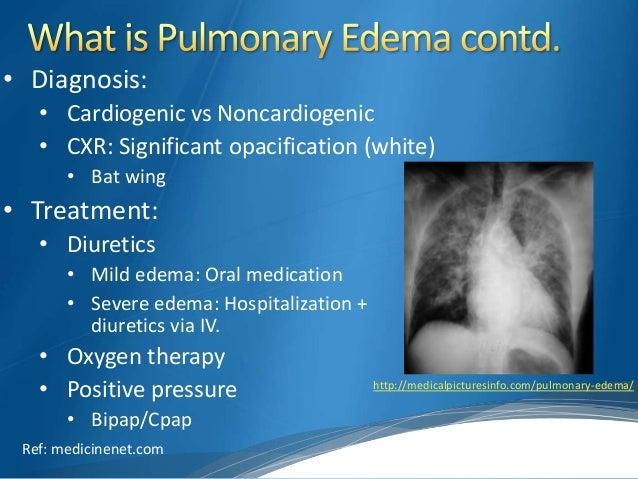 Pneumothorax And Then Pulmonary Edema