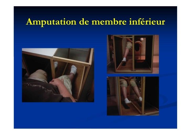 Amputation de membre inférieur