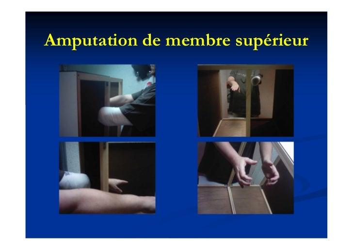 Amputation de membre supérieur