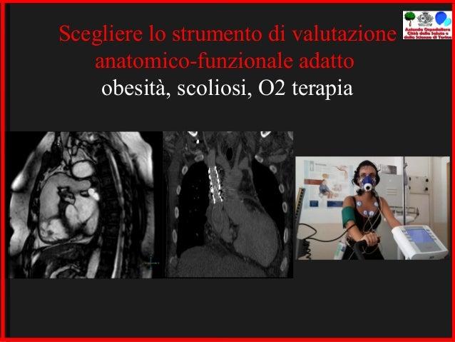 Cura omeopatica di ernia di una spina dorsale