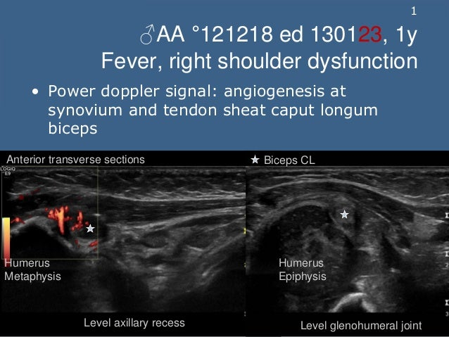 1 ♂AA °121218 ed 130123, 1y Fever, right shoulder dysfunction • Power doppler signal: angiogenesis at synovium and tendon ...