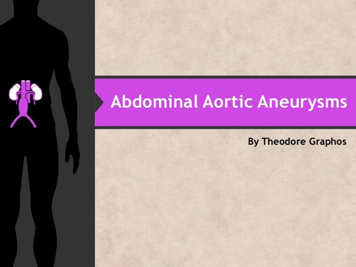 Abdominal Aortic Aneurysms               By Theodore Graphos
