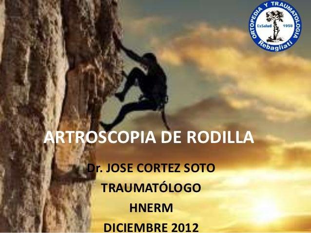 ARTROSCOPIA DE RODILLA    Dr. JOSE CORTEZ SOTO      TRAUMATÓLOGO           HNERM       DICIEMBRE 2012
