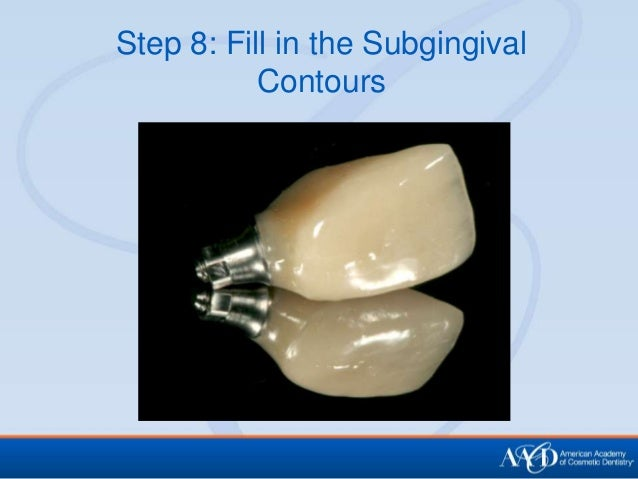 the key steps of the implantation Provides dental practitioners and related specialists with the essential steps   for information on the straumann® bone level tapered implant, please refer to .