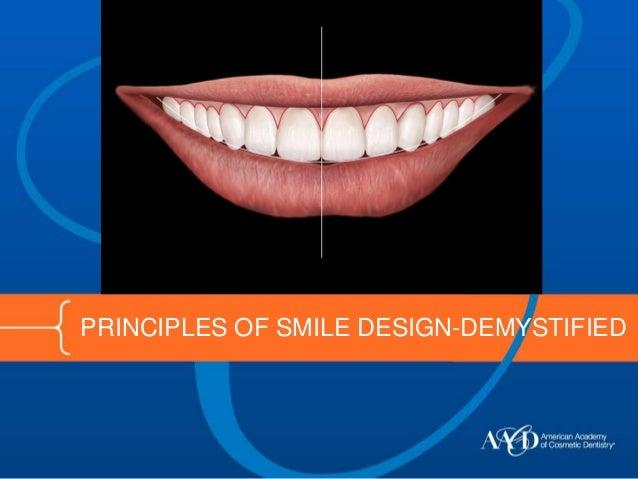 PRINCIPLES OF SMILE DESIGN-DEMYSTIFIED