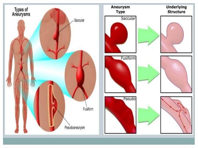 Aortic aneurysm imaging