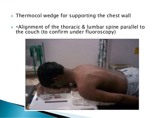  Traditional recommendation for lower border of spinal field is inferior edge of S2 (myelogram & autopsy studies).  8.7%...