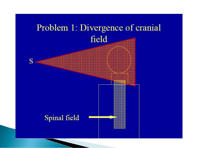 Borders  Anterior: Posterior clinoid process.  Posterior: Internal occipital protuberance.  Inferior: C2-C3 interspace....