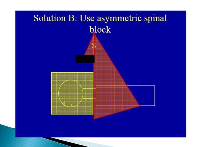 .Field matching using field alignment option