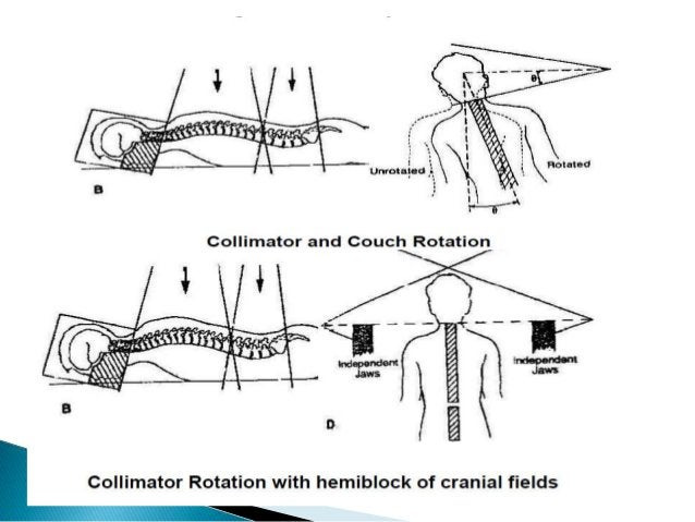  The plan used three field sets, each with a unique isocenter.  One field set with seven fields treated the cranium.  T...