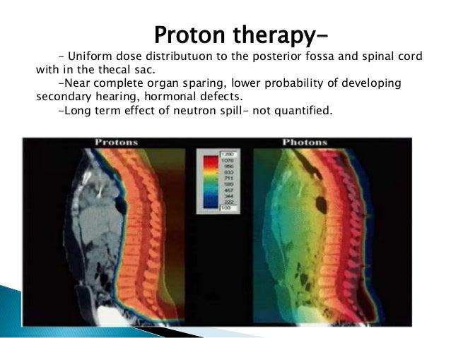 craniospinal irradiation