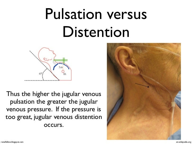 Superior ... Reproducible Chest Pain; 16. Pulsation Versus Distention ...