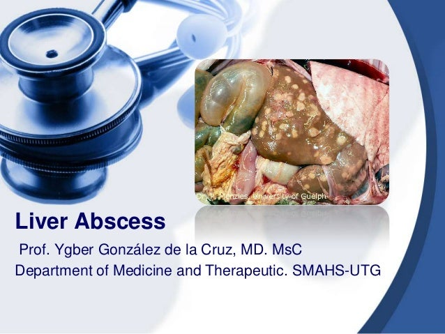 Liver AbscessProf. Ygber González de la Cruz, MD. MsCDepartment of Medicine and Therapeutic. SMAHS-UTG