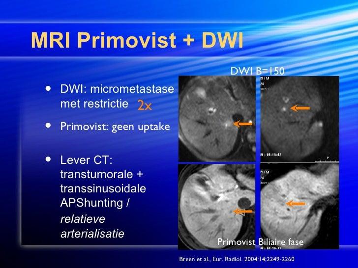 MRI Stroke Case Study - Greater Waterbury Imaging Center