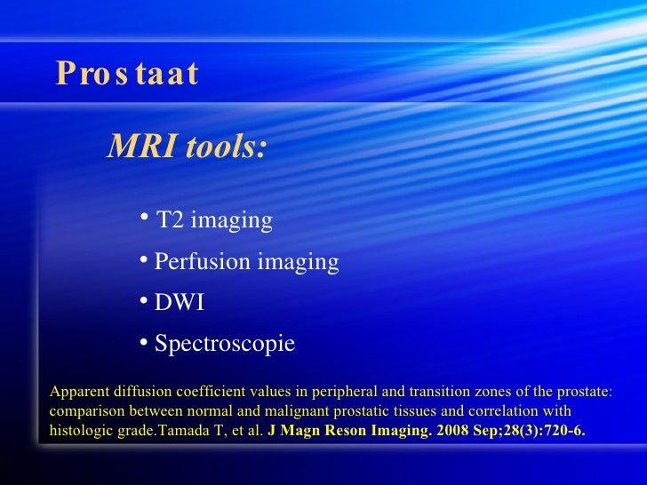 PET/MRI in the Upper Abdomen - ScienceDirect