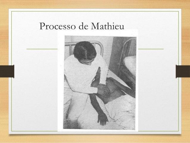 Processo de Lemos Torres • A mão esquerda do examinador é utilizada na tração anterior enquanto a direita palpa buscando a...