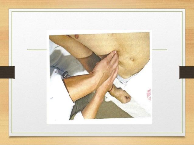 Percussão do Fígado  1-Delimita o limite superior do fígado (5º EICD)  2-A macicez absoluta marca o contato direto do fí...