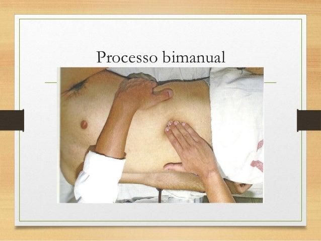 Palpação da Aorta abdominal