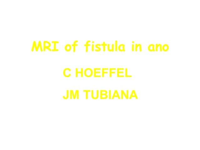 MRI of fistula in ano C HOEFFEL JM TUBIANA
