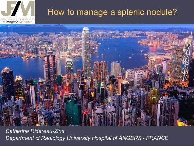 How to manage a splenic nodule?  Catherine Ridereau-Zins Department of Radiology University Hospital of ANGERS - FRANCE