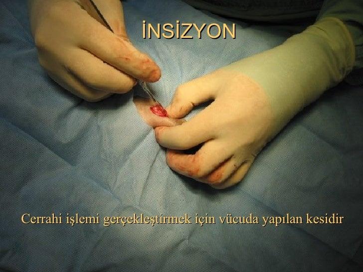 İNSİZYON Cerrahi işlemi gerçekleştirmek için vücuda yapılan kesidir