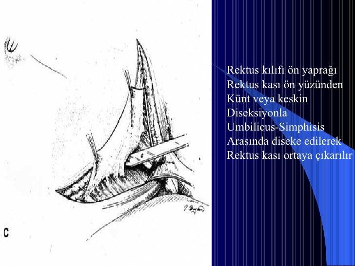 Rektus kılıfı ön yaprağı Rektus kası ön yüzünden  Künt veya keskin  Diseksiyonla Umbilicus-Simphisis  Arasında diseke edil...