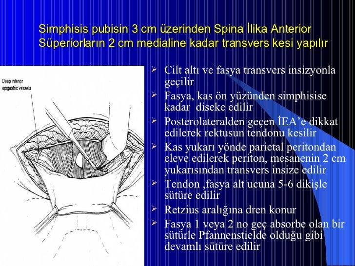 Simphisis pubisin 3 cm üzerinden Spina İlika Anterior Süperiorların 2 cm medialine kadar transvers kesi yapılır <ul><li>Ci...