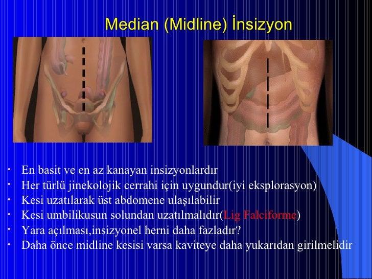 Median (Midline) İnsizyon <ul><li>En basit ve en az kanayan insizyonlardır </li></ul><ul><li>Her türlü jinekolojik cerrahi...