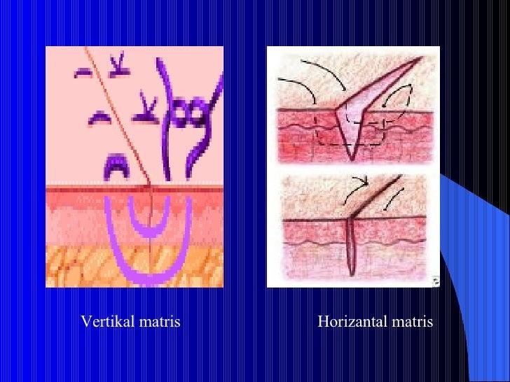 Vertikal matris Horizantal matris