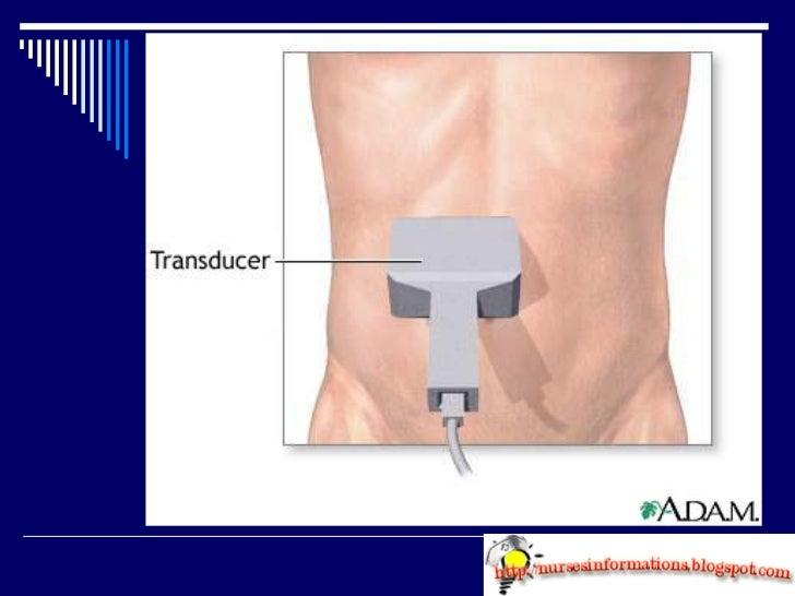 Abdominal Ultrasound Slide 3