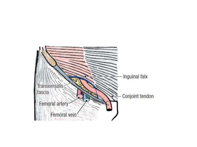 Natural mechanism of preventing            inguinal hernia• Obliquity of canal.• Shutter action of arched fibers of intern...