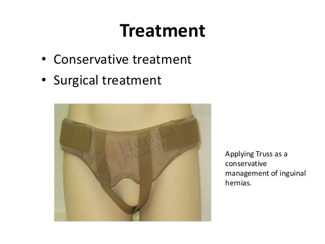 McVay Repair• Transverse abdominis aponeurosis to Coopers  ligament and iliopubic tract