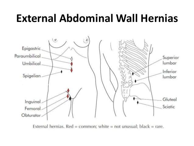 External Abdominal Wall Hernias