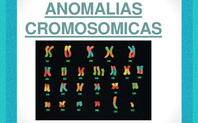 ANOMALIAS CROMOSOMICAS LUGO BALDERAS JOSE LUIS