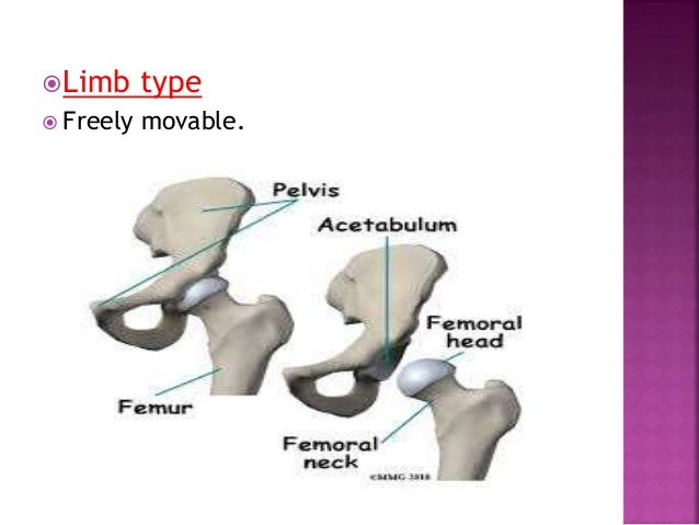 when joint cavity is divided into two by an intra-articular disc eg.Tempromandibular joint and sternoclavicular joint.