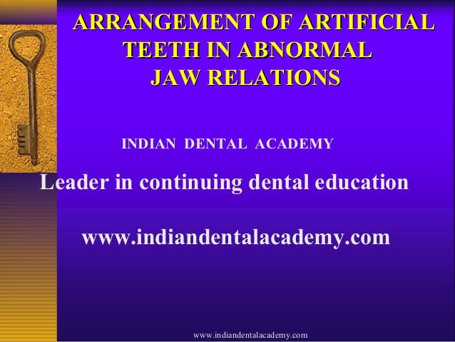 ARRANGEMENT OF ARTIFICIALARRANGEMENT OF ARTIFICIAL TEETH IN ABNORMALTEETH IN ABNORMAL JAW RELATIONSJAW RELATIONS INDIAN DE...