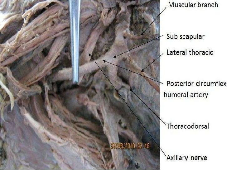 Abnormal Branching Pattern Of The Axillary Artery