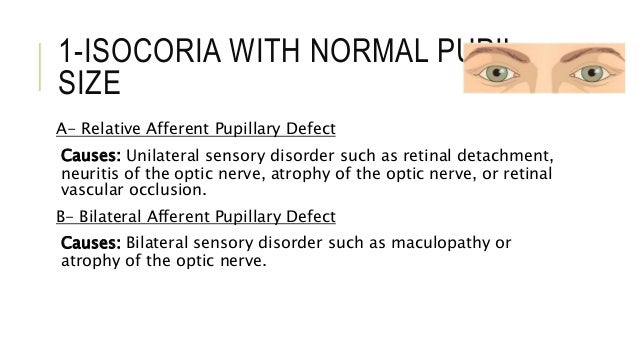 What is normal pupil size?