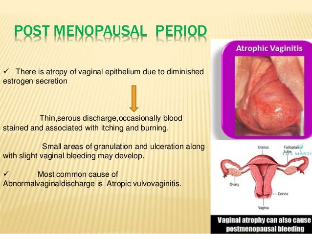 Irritation around vulva after period