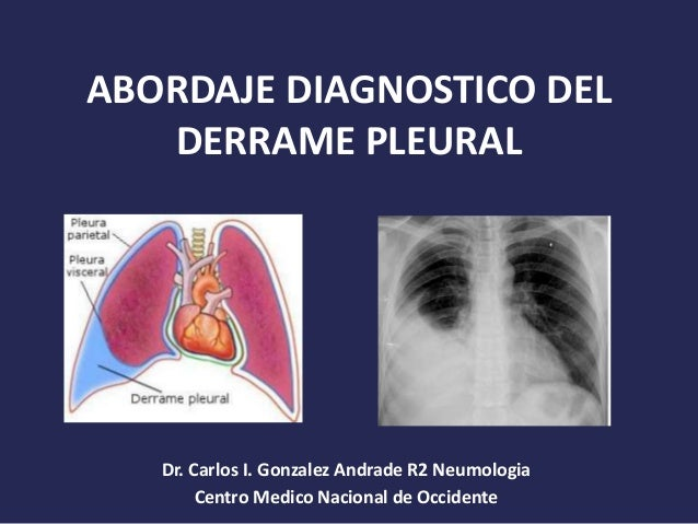 ABORDAJE DIAGNOSTICO DEL DERRAME PLEURAL Dr. Carlos I. Gonzalez Andrade R2 Neumologia Centro Medico Nacional de Occidente