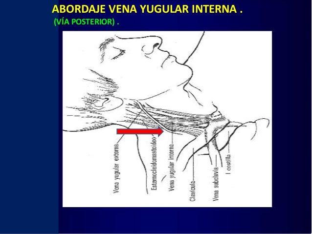 Abordaje venoso central