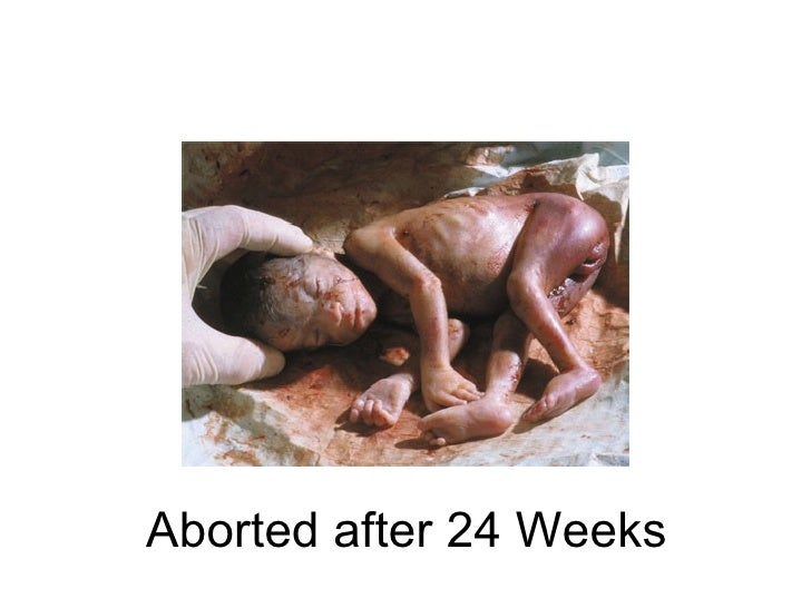 Abortion Worst Crime